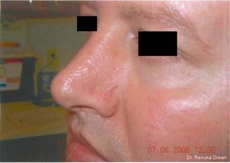 Laser-for-veins-and-redness-for-men: Patient 6 - Before Image