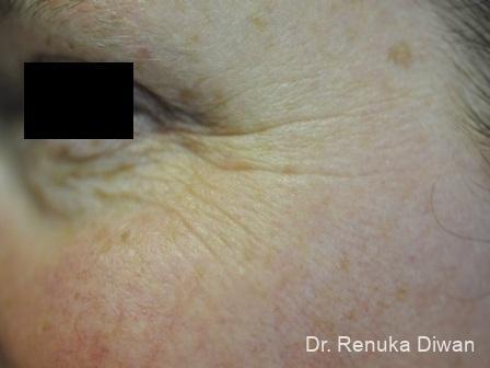 Crows-feet-creases-for-men: Patient 2 - Before Image
