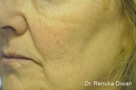 Laser Skin Resurfacing: Patient 9 - Before Image