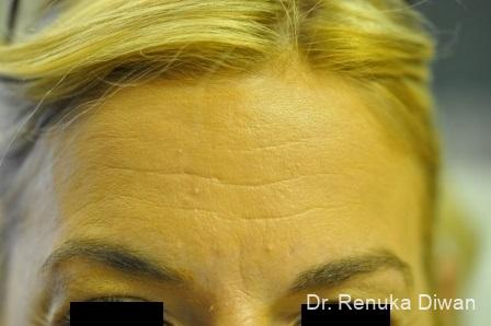 Forehead Creases: Patient 2 - Before Image 1