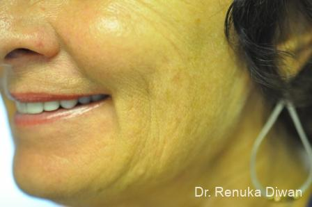 Smile Lines: Patient 8 - After Image