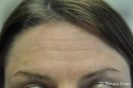 BOTOX® Cosmetic: Patient 17 - Before Image