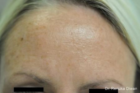 BOTOX® Cosmetic: Patient 9 - Before Image