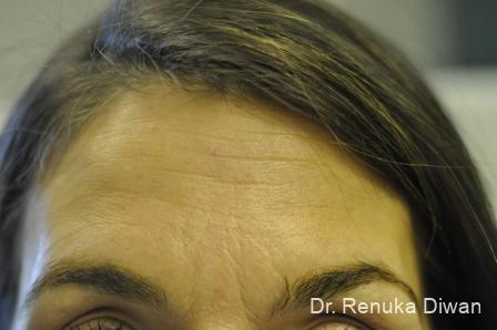 BOTOX® Cosmetic: Patient 15 - Before Image
