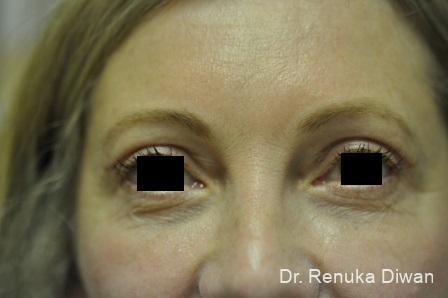 Blepharoplasty: Patient 1 - After Image
