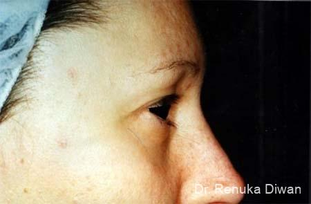 Blepharoplasty: Patient 5 - Before Image 1