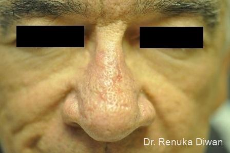 Laser Skin Resurfacing   Face For Men: Patient 2 - After Image 1