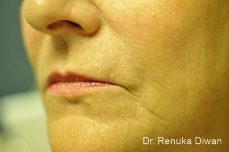 Laser Skin Resurfacing: Patient 1 - After Image