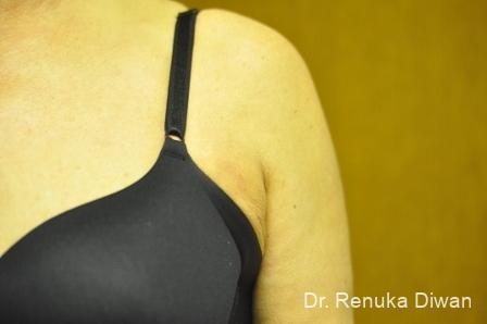 Liposuction: Patient 18 - After Image 1