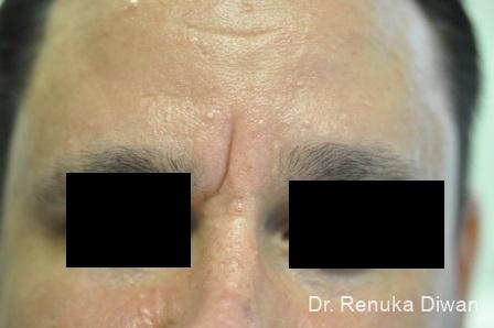 Frown Lines: Patient 11 - Before Image 1