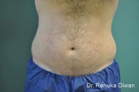 Coolsculpting For Men: Patient 2 - Before Image 1