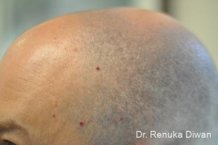 Laser Treatment Of Angiomas: Patient 1 - Before Image 1