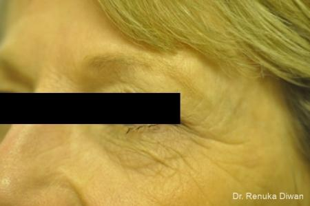 Microneedling: Patient 1 - Before Image 1