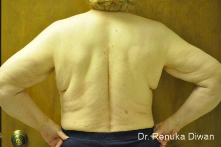 Liposuction: Patient 19 - After Image 2