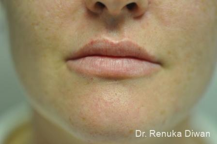 Lip Augmentation: Patient 3 - After Image 1
