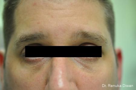 Dark Circles: Patient 1 - After Image