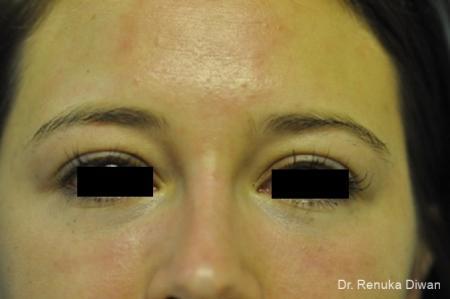 Dark Circles: Patient 15 - After Image 1