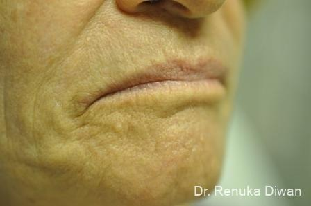 Laser Skin Resurfacing - Face: Patient 10 - After Image 1