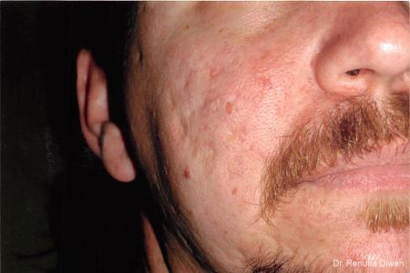 Acne Scars: Patient 1 - Before Image 1