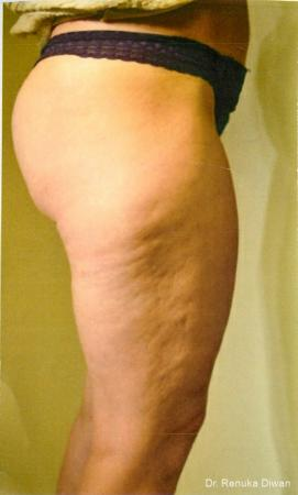 Cellulite Reduction: Patient 1 - Before Image