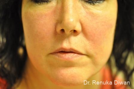 Laser For Veins And Redness: Patient 10 - Before Image