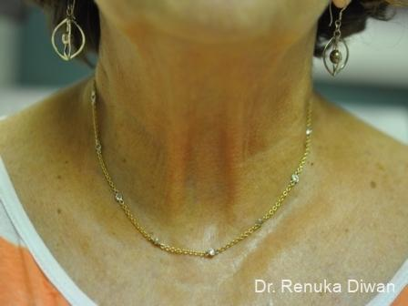 Skin Tightening: Patient 2 - After Image 1