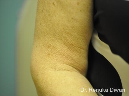 Skin Tightening: Patient 8 - Before Image