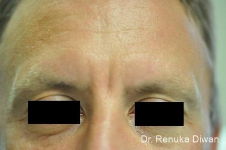 Botox-cosmetic-for-men: Patient 2 - Before Image