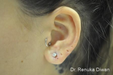 Earlobe Surgery: Patient 6 - After Image