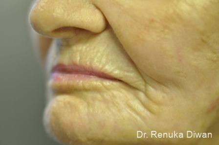 Laser Skin Resurfacing: Patient 11 - After Image 2