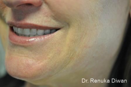 Smile Lines: Patient 9 - After Image
