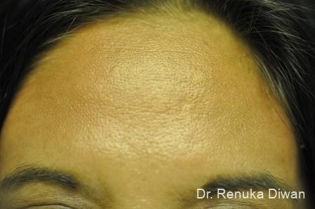 BOTOX® Cosmetic: Patient 13 - After Image 1
