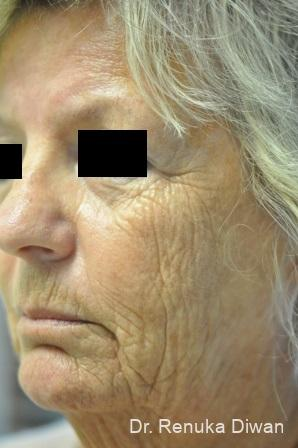 Laser Skin Resurfacing: Patient 7 - Before Image