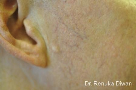 Laser For Veins And Redness: Patient 9 - Before Image 1