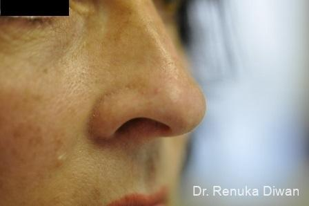 Laser For Veins And Redness: Patient 18 - After Image 1