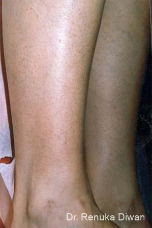 Veins On Legs: Patient 1 - After Image
