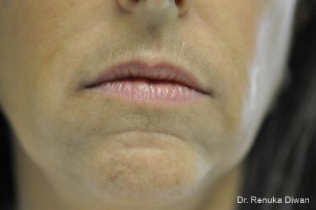 Lip Augmentation: Patient 9 - Before Image