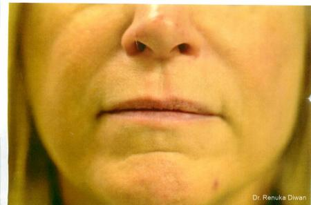 Smile Lines: Patient 7 - After Image