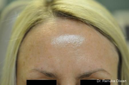 Lasers For Brown Spots: Patient 11 - After Image 1