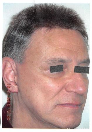 Facelift--neck-lift-for-men: Patient 1 - After Image
