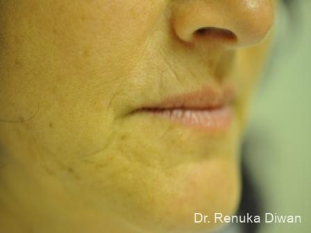 Lips And Mouth: Patient 10 - Before Image