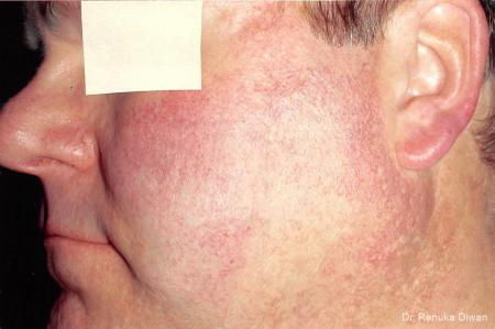 Laser For Veins And Redness For Men: Patient 3 - Before Image 1