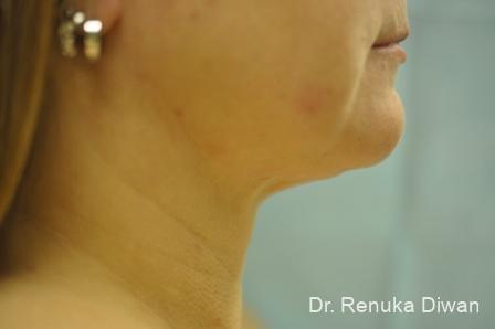 Liposuction: Patient 4 - After Image 1
