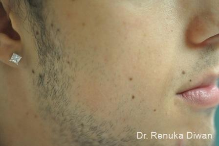 Lasers For Brown Spots: Patient 13 - Before Image 1