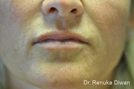 BOTOX® Cosmetic: Patient 30 - After Image 1