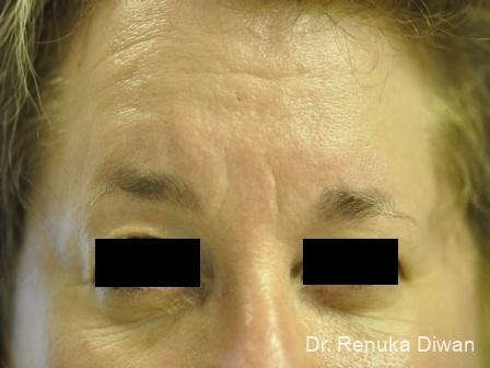 Forehead Creases: Patient 3 - Before Image 1