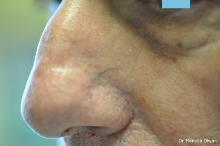 Laser For Veins And Redness For Men: Patient 8 - Before Image 1