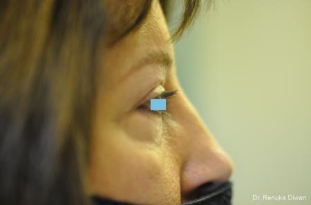 Blepharoplasty: Patient 3 - After Image 3