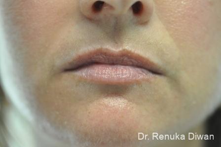 Lip Augmentation: Patient 2 - Before Image