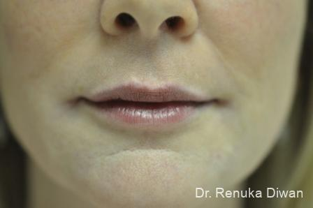 Lips And Mouth: Patient 9 - After Image